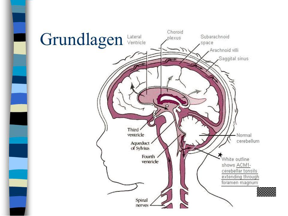Myelographie/Postmyelographie-CT bei posttraumatischer Syringomyelie