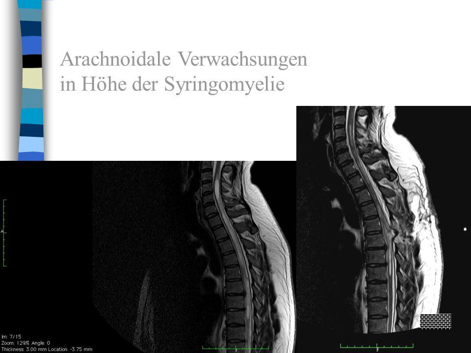 Arachnoidale Verwachsungen in Höhe der Syringomyelie