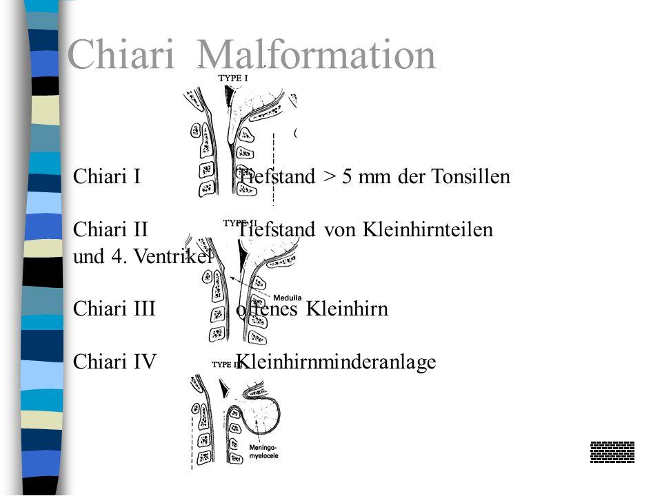 Chiari Malformation Chiari ITiefstand > 5 mm der Tonsillen Chiari IITiefstand von Kleinhirnteilen und 4.