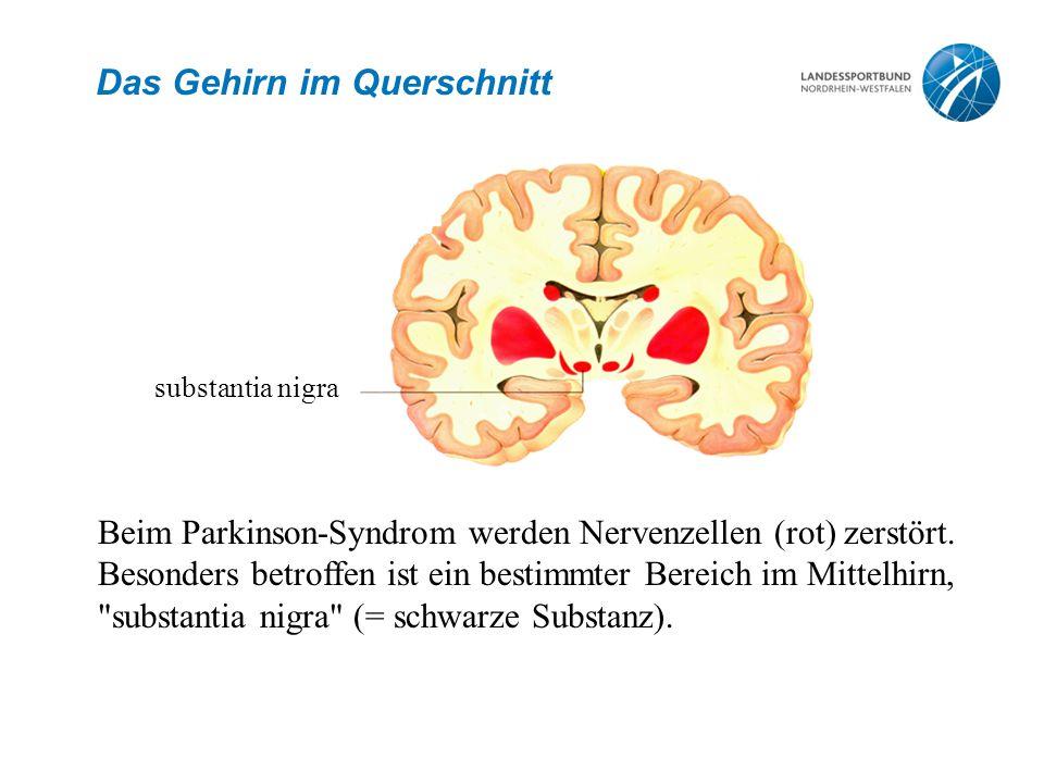 Signalübertragung Nervenimpuls Dopamin Nervenimpuls Empfängerzelle Dopamin = Übertragungstoff für Impulse zwischen den Gehirnzellen Bei Parkinson liegt ein Mangel an Dopamin vor.