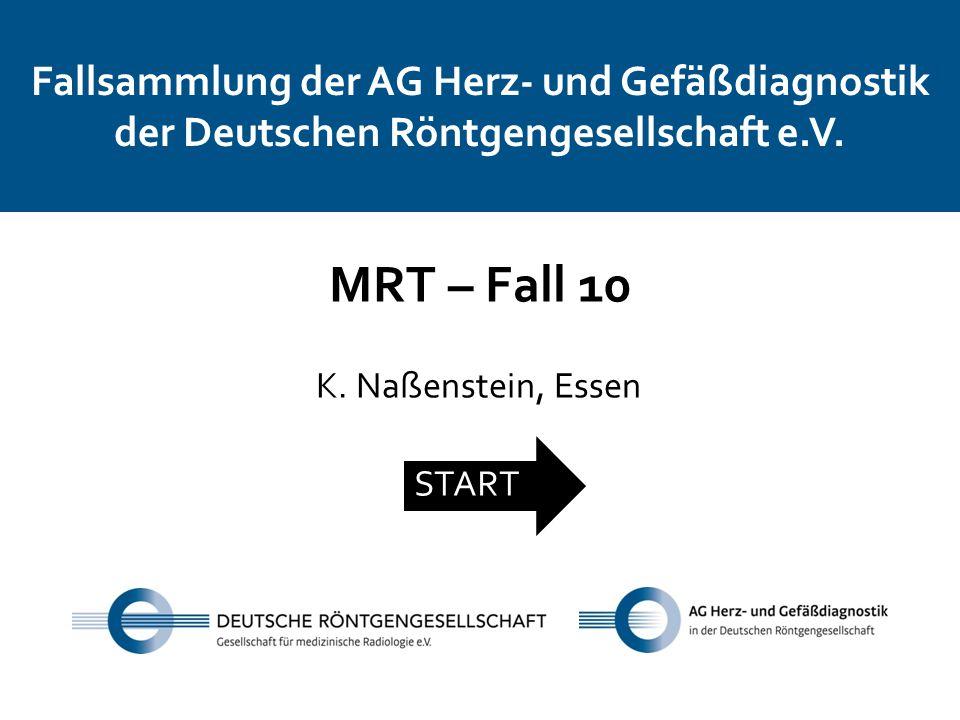 Fallsammlung der AG Herz- und Gefäßdiagnostik der Deutschen Röntgengesellschaft e.V. MRT – Fall 10 K. Naßenstein, Essen START