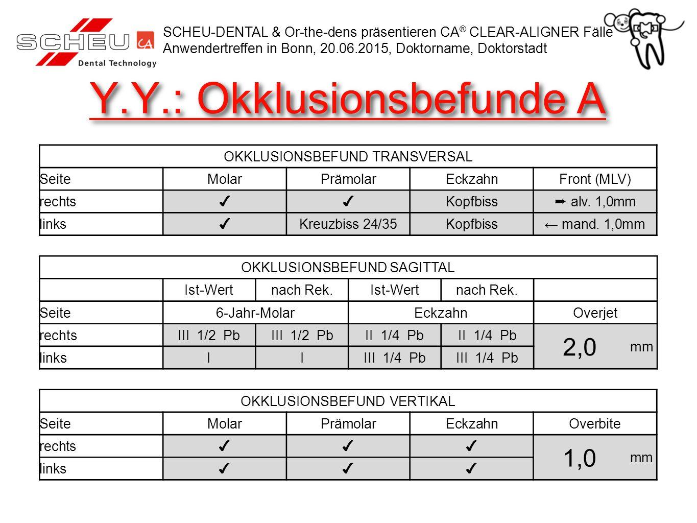 Y.Y.: Okklusionsbefunde A OKKLUSIONSBEFUND TRANSVERSAL SeiteMolarPrämolarEckzahnFront (MLV) rechts ✔✔ Kopfbiss ➞ alv. 1,0mm links ✔ Kreuzbiss 24/35Kop