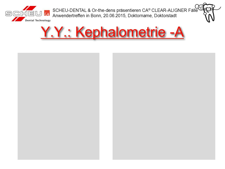 Y.Y.: Kephalometrie -A SCHEU-DENTAL & Or-the-dens präsentieren CA ® CLEAR-ALIGNER Fälle Anwendertreffen in Bonn, 20.06.2015, Doktorname, Doktorstadt