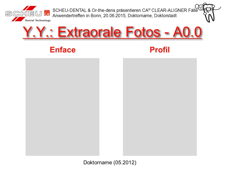 Y.Y.: Extraorale Fotos - A0.0 EnfaceProfil SCHEU-DENTAL & Or-the-dens präsentieren CA ® CLEAR-ALIGNER Fälle Anwendertreffen in Bonn, 20.06.2015, Doktorname, Doktorstadt Doktorname (05.2012)