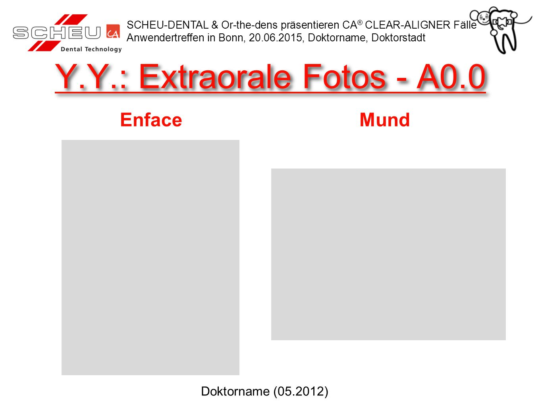 Y.Y.: Extraorale Fotos - A0.0 Enface SCHEU-DENTAL & Or-the-dens präsentieren CA ® CLEAR-ALIGNER Fälle Anwendertreffen in Bonn, 20.06.2015, Doktorname,