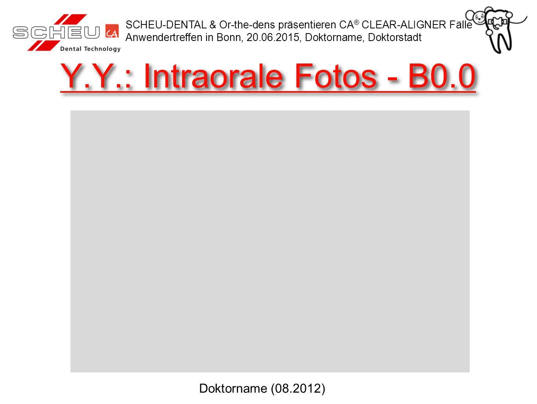 Y.Y.: Intraorale Fotos - B0.0 SCHEU-DENTAL & Or-the-dens präsentieren CA ® CLEAR-ALIGNER Fälle Anwendertreffen in Bonn, 20.06.2015, Doktorname, Doktorstadt Doktorname (08.2012)