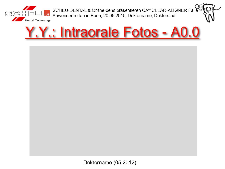 Y.Y.: Intraorale Fotos - A0.0 SCHEU-DENTAL & Or-the-dens präsentieren CA ® CLEAR-ALIGNER Fälle Anwendertreffen in Bonn, 20.06.2015, Doktorname, Doktor