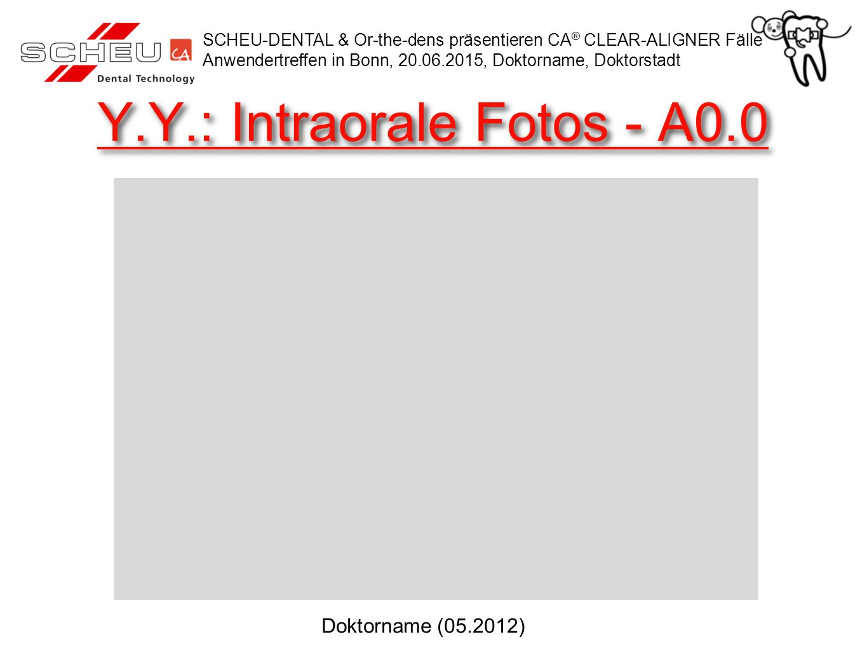 Y.Y.: OK Setup Prognose SCHEU-DENTAL & Or-the-dens präsentieren CA ® CLEAR-ALIGNER Fälle Anwendertreffen in Bonn, 20.06.2015, Doktorname, Doktorstadt Doktorname (05.2012)