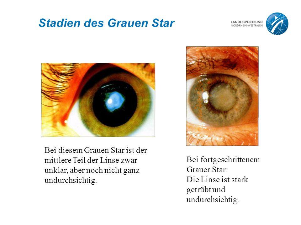 Bei diesem Grauen Star ist der mittlere Teil der Linse zwar unklar, aber noch nicht ganz undurchsichtig.