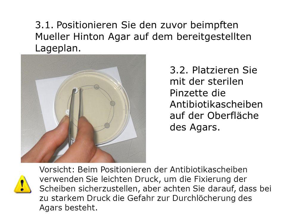 3.1. Positionieren Sie den zuvor beimpften Mueller Hinton Agar auf dem bereitgestellten Lageplan. 3.2. Platzieren Sie mit der sterilen Pinzette die An