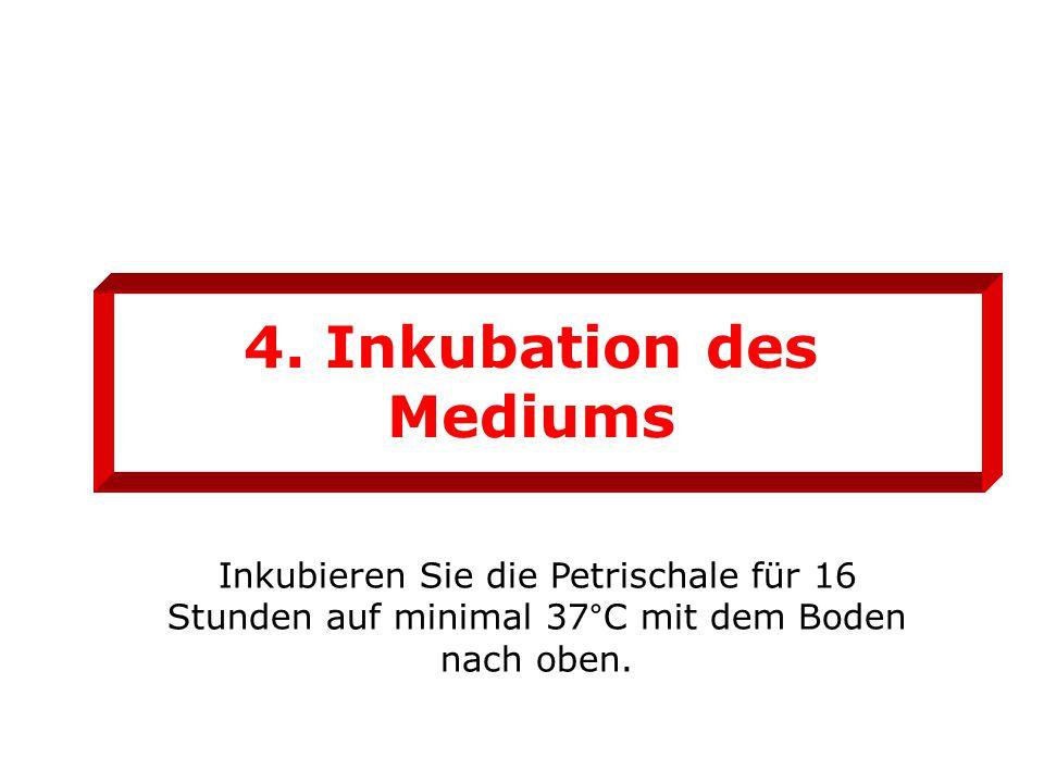 4. Inkubation des Mediums Inkubieren Sie die Petrischale für 16 Stunden auf minimal 37°C mit dem Boden nach oben.