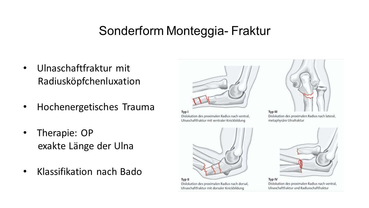 Olecranonfraktur Sturz auf den gebeugten Arm Klinisch imponiert Schwellung und Streckhemmung Dislokation durch Zug des M.