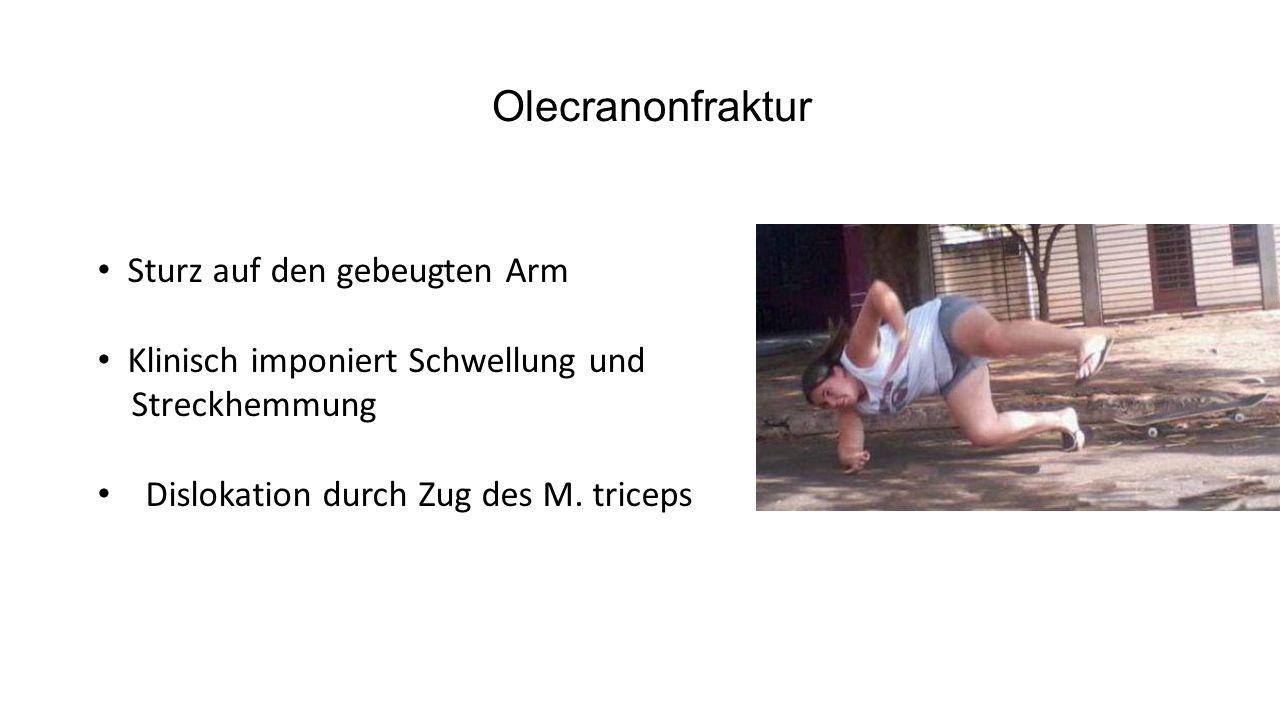 Olecranonfraktur- Therapie Typ I Frakturen: Konservative Therapie im OA Gips möglich Typ II+ III: Operativ OP Methode:  Zuggurtung (Umwandlung von Zug- in Druckkräfte)  Verplattung