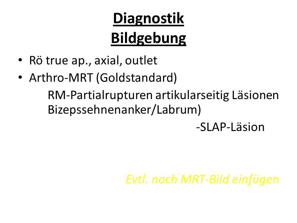 Diagnostik Bildgebung Rö true ap., axial, outlet Arthro-MRT (Goldstandard) RM-Partialrupturen artikularseitig Läsionen Bizepssehnenanker/Labrum) -SLAP
