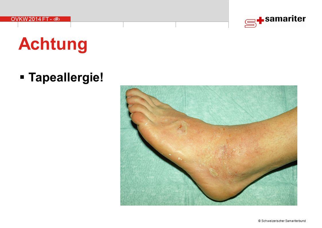 OVKW 2014 FT - 21 © Schweizerischer Samariterbund Achtung  Tapeallergie!
