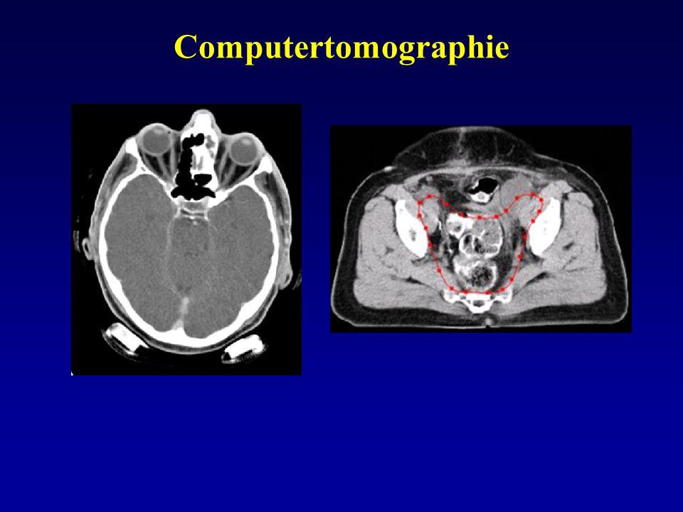 Prinzip der Computertomographie Änderung der Intensität von Röntgenstrahlung beim Durchgang durch eine Folge homogener Materialien: