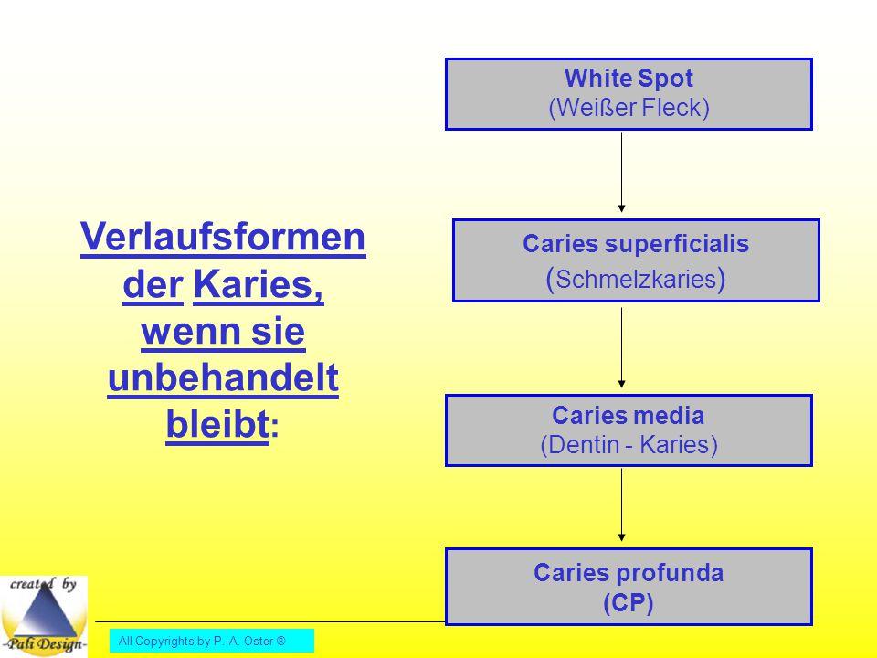 All Copyrights by P.-A. Oster ® Verlaufsformen der Karies, wenn sie unbehandelt bleibt : White Spot (Weißer Fleck) Caries superficialis ( Schmelzkarie
