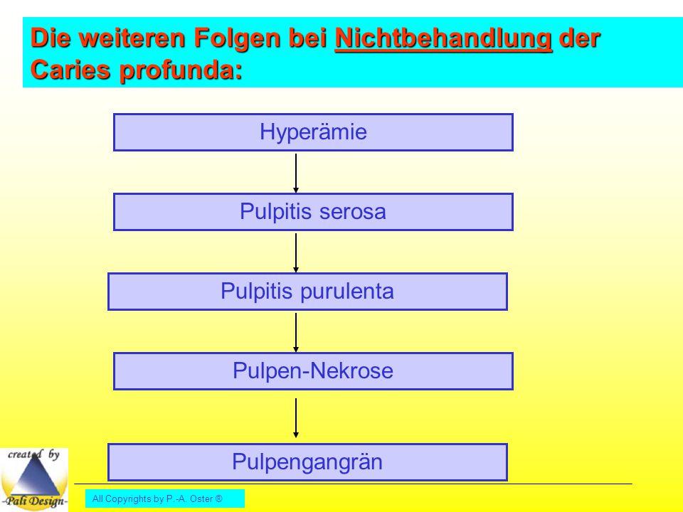 All Copyrights by P.-A. Oster ® Hyperämie Pulpitis serosa Pulpitis purulenta Pulpen-Nekrose Pulpengangrän Die weiteren Folgen bei Nichtbehandlung der