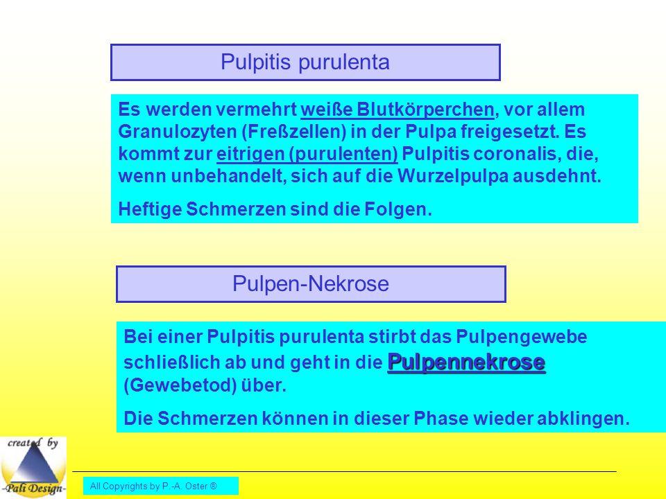 All Copyrights by P.-A. Oster ® Pulpen-Nekrose Pulpitis purulenta Es werden vermehrt weiße Blutkörperchen, vor allem Granulozyten (Freßzellen) in der