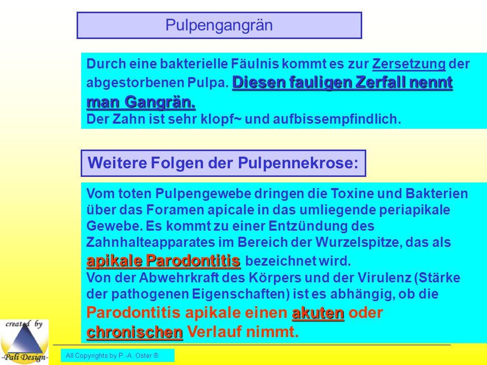 All Copyrights by P.-A. Oster ® Pulpengangrän Diesen fauligen Zerfall nennt man Gangrän. Durch eine bakterielle Fäulnis kommt es zur Zersetzung der ab
