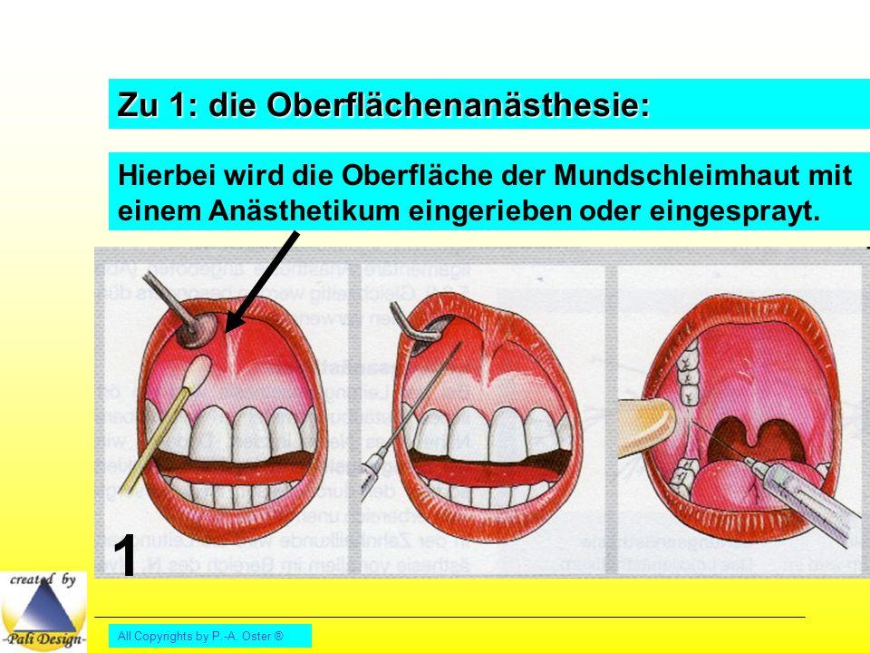All Copyrights by P.-A. Oster ® Zu 1: die Oberflächenanästhesie: Hierbei wird die Oberfläche der Mundschleimhaut mit einem Anästhetikum eingerieben od
