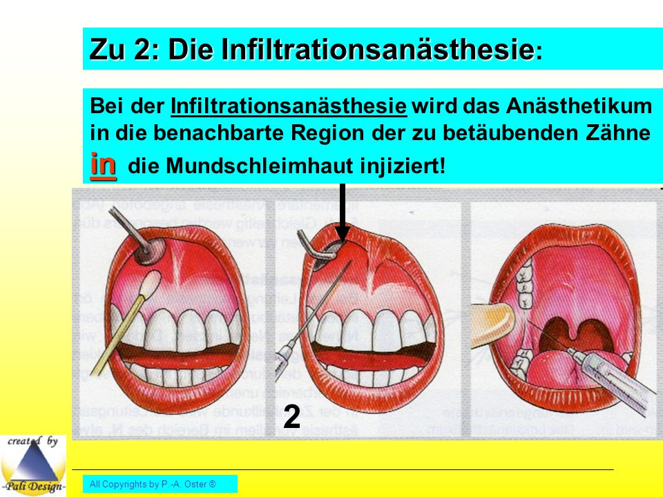 All Copyrights by P.-A. Oster ® Zu 2: DieInfiltrationsanästhesie Zu 2: Die Infiltrationsanästhesie : 2 in Bei der Infiltrationsanästhesie wird das Anä