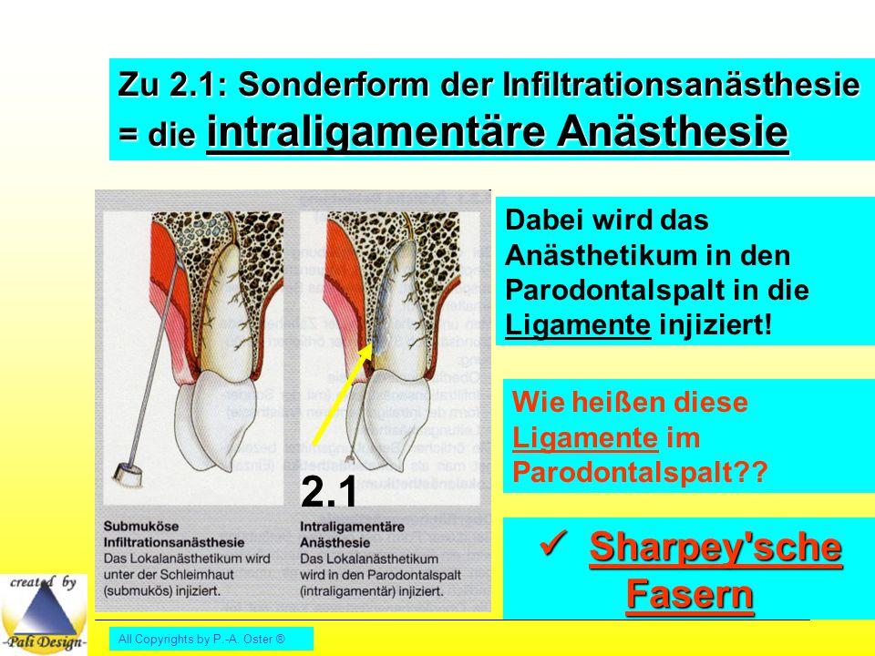 All Copyrights by P.-A. Oster ® Zu 2.1: Sonderform der Infiltrationsanästhesie = die intraligamentäre Anästhesie Dabei wird das Anästhetikum in den Pa