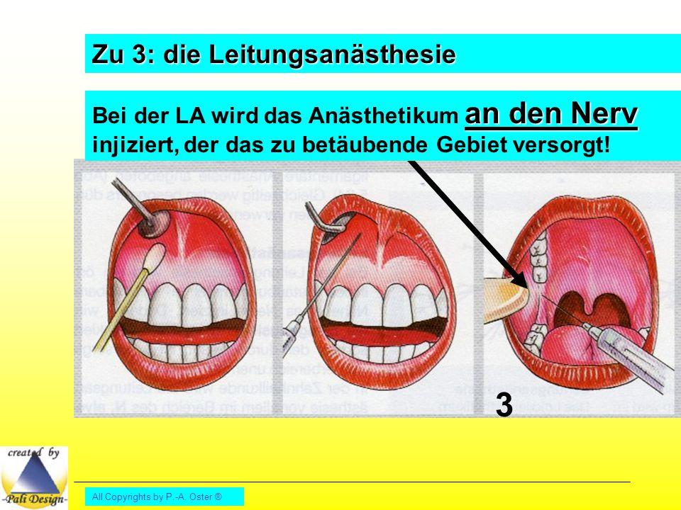All Copyrights by P.-A. Oster ® Zu 3: die Leitungsanästhesie 3 an den Nerv Bei der LA wird das Anästhetikum an den Nerv injiziert, der das zu betäuben