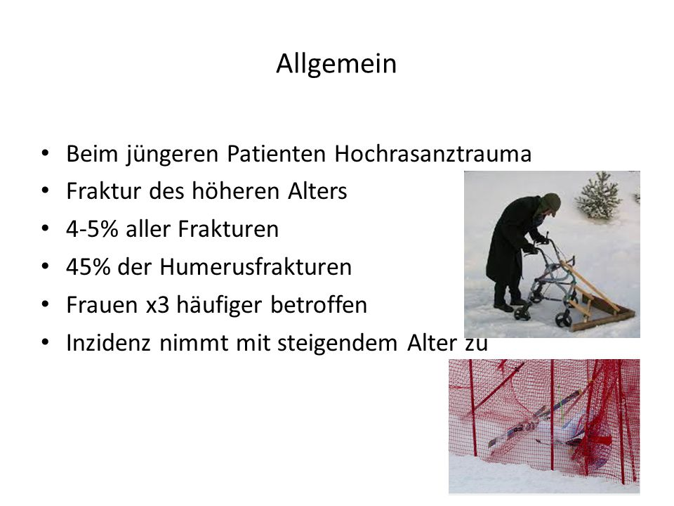 Allgemein Beim jüngeren Patienten Hochrasanztrauma Fraktur des höheren Alters 4-5% aller Frakturen 45% der Humerusfrakturen Frauen x3 häufiger betroff