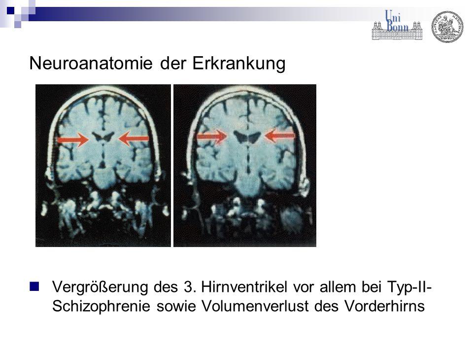 Neuroanatomie der Erkrankung Vergrößerung des 3. Hirnventrikel vor allem bei Typ-II- Schizophrenie sowie Volumenverlust des Vorderhirns