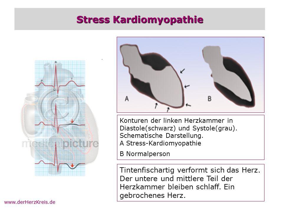 www.derHerzKreis.de Stress Kardiomyopathie Konturen der linken Herzkammer in Diastole(schwarz) und Systole(grau). Schematische Darstellung. A Stress-K