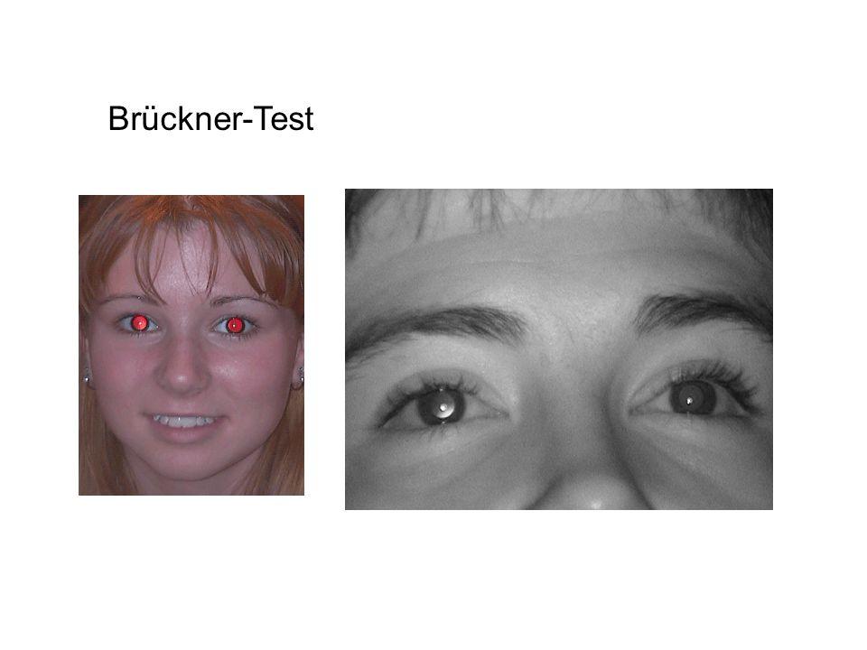 Brückner-Test