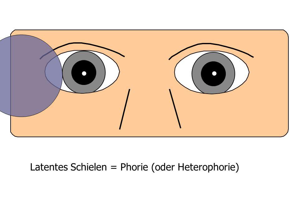 Latentes Schielen = Phorie (oder Heterophorie)