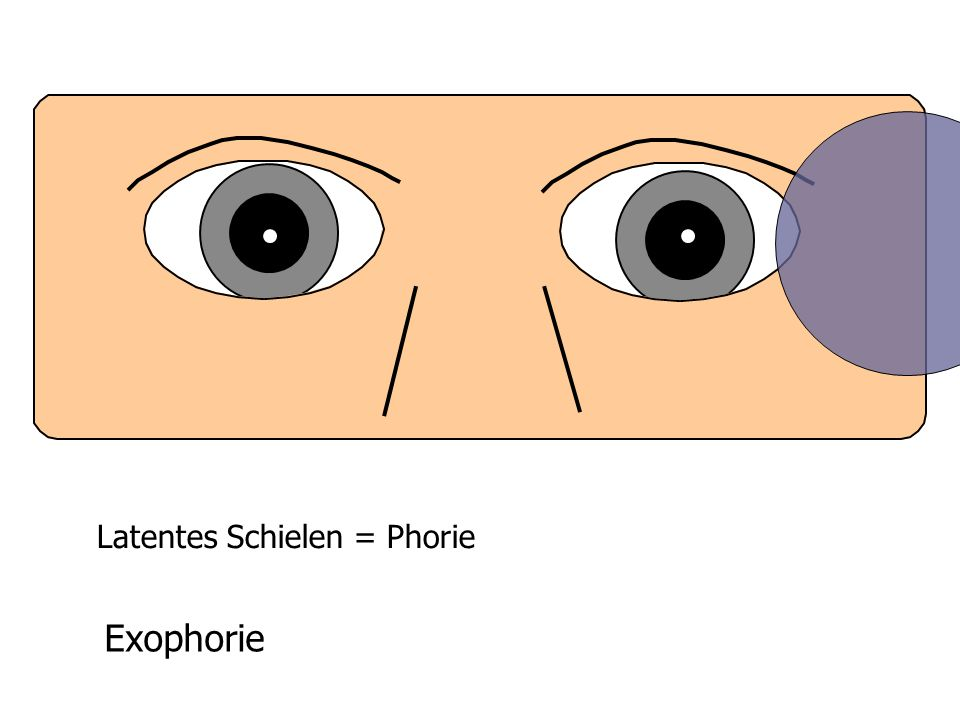 Latentes Schielen = Phorie Exophorie