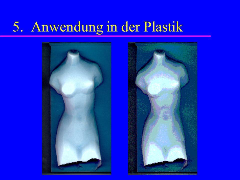 5. Anwendung in der Plastik