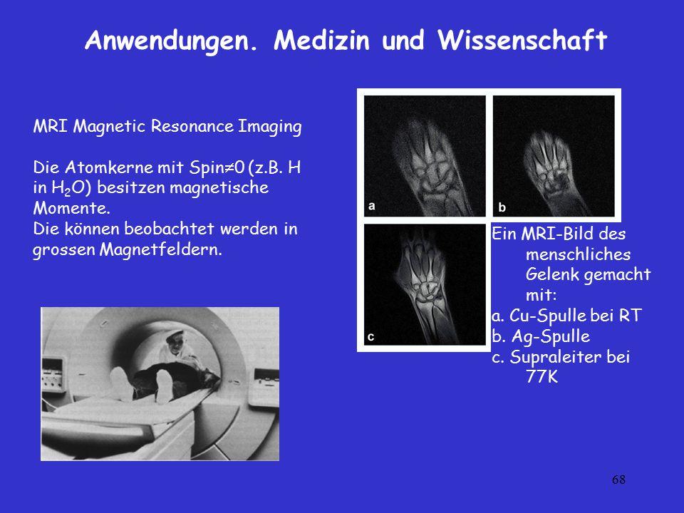 68 Anwendungen. Medizin und Wissenschaft MRI Magnetic Resonance Imaging Die Atomkerne mit Spin  0 (z.B. H in H 2 O) besitzen magnetische Momente. Die