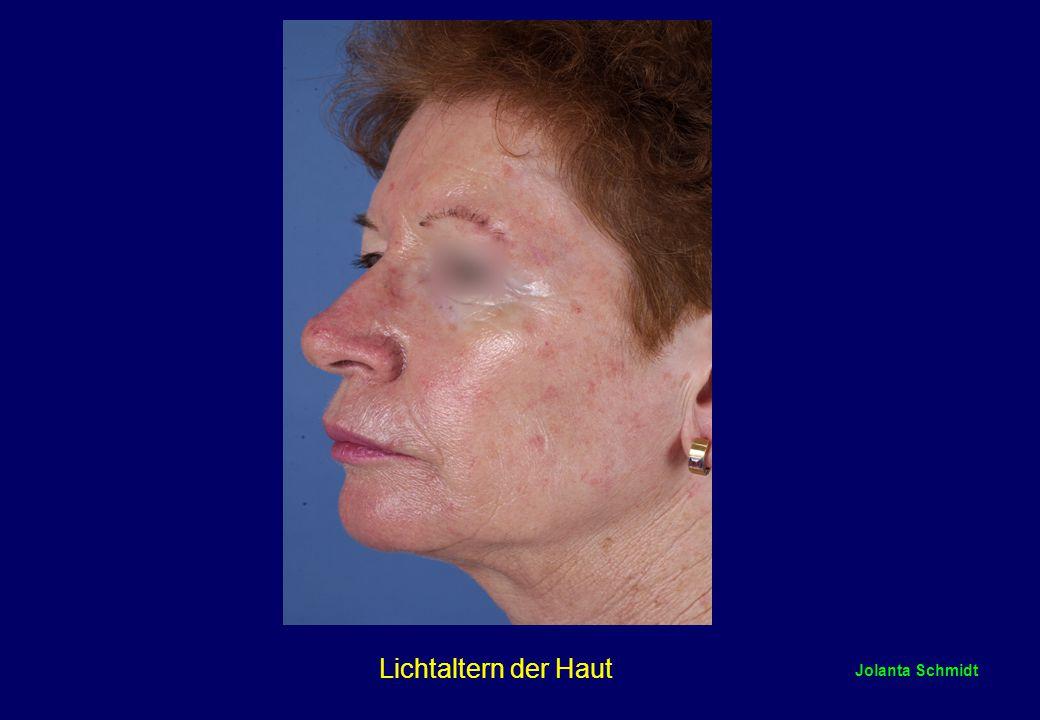 Jolanta Schmidt Lichtaltern der Haut