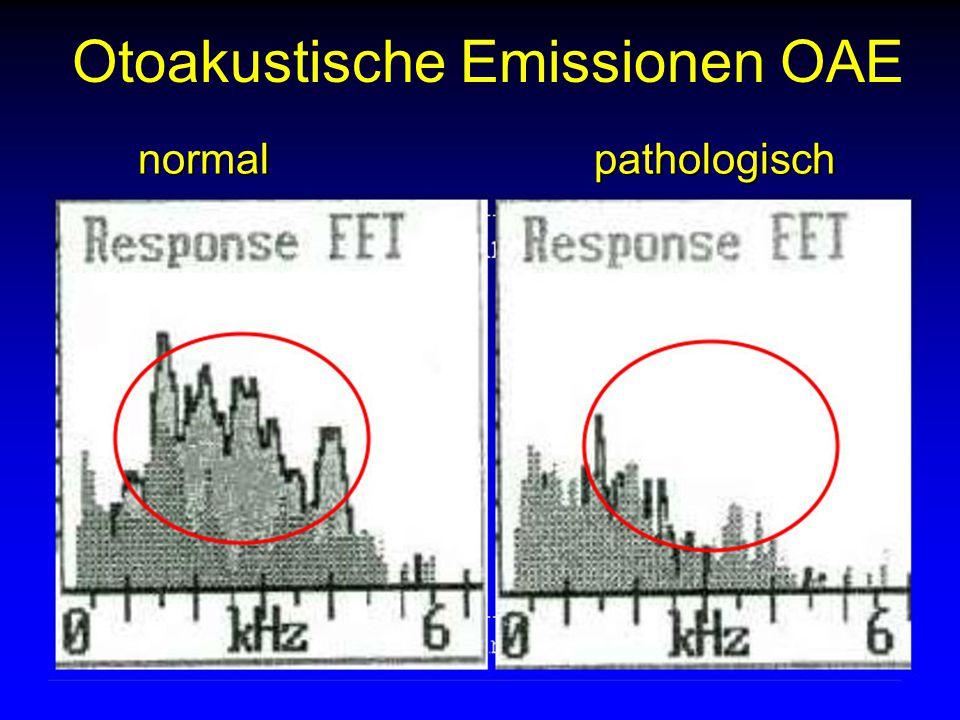 Landenhof/3.Nov.2005 Otoakustische Emissionen OAEnormalpathologisch