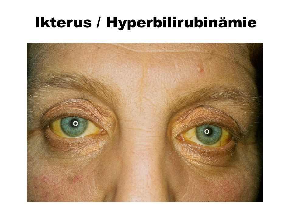 Ikterus Skleren Ikterus / Hyperbilirubinämie