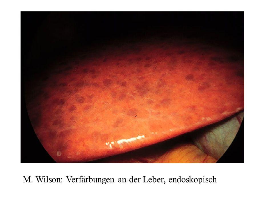 M. Wilson: Verfärbungen an der Leber, endoskopisch