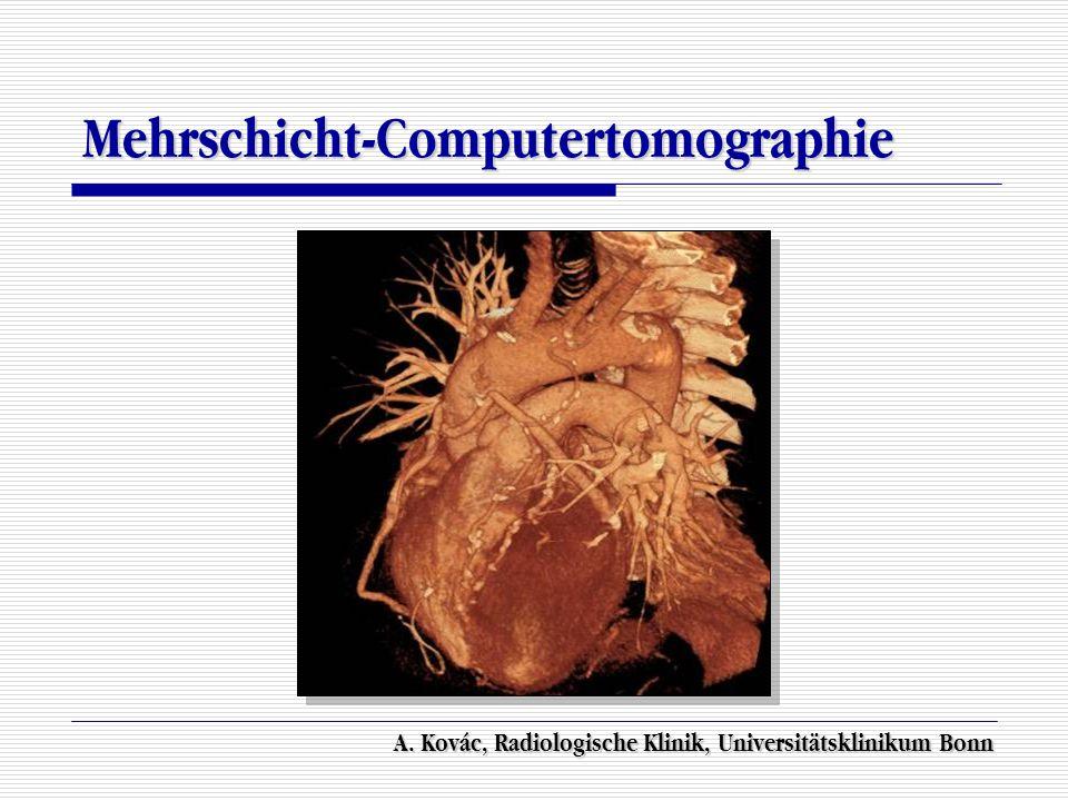 Mehrschicht-Computertomographie A. Kovác, Radiologische Klinik, Universitätsklinikum Bonn