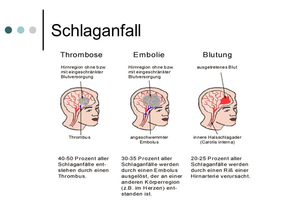 2. Ursachen für neurogene Sprach- und Sprechstörungen  Hirninfarkt  Hirnschlag (Schlaganfall – Apoplexie)  Hirnblutung  Embolie  Trombose  Tumor
