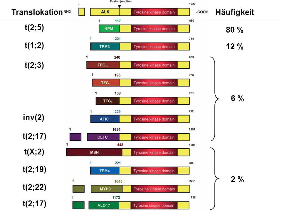 Häufigkeit 80 % 12 % 6 % 2 % Translokation t(2;5) t(1;2) t(2;3) inv(2) t(2;17) t(X;2) t(2;19) t(2;22) t(2;17)