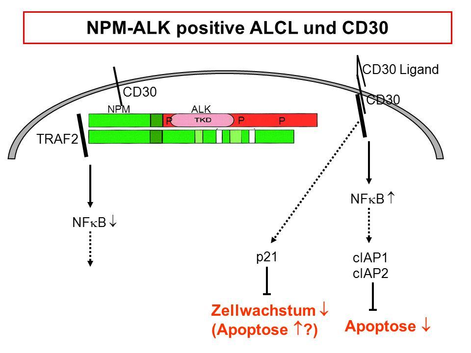 CD30 NF  B  NPMALK P PP TRAF2 CD30 CD30 Ligand NF  B  cIAP1 cIAP2 Apoptose  Zellwachstum  (Apoptose  ?) NPM-ALK positive ALCL und CD30 p21