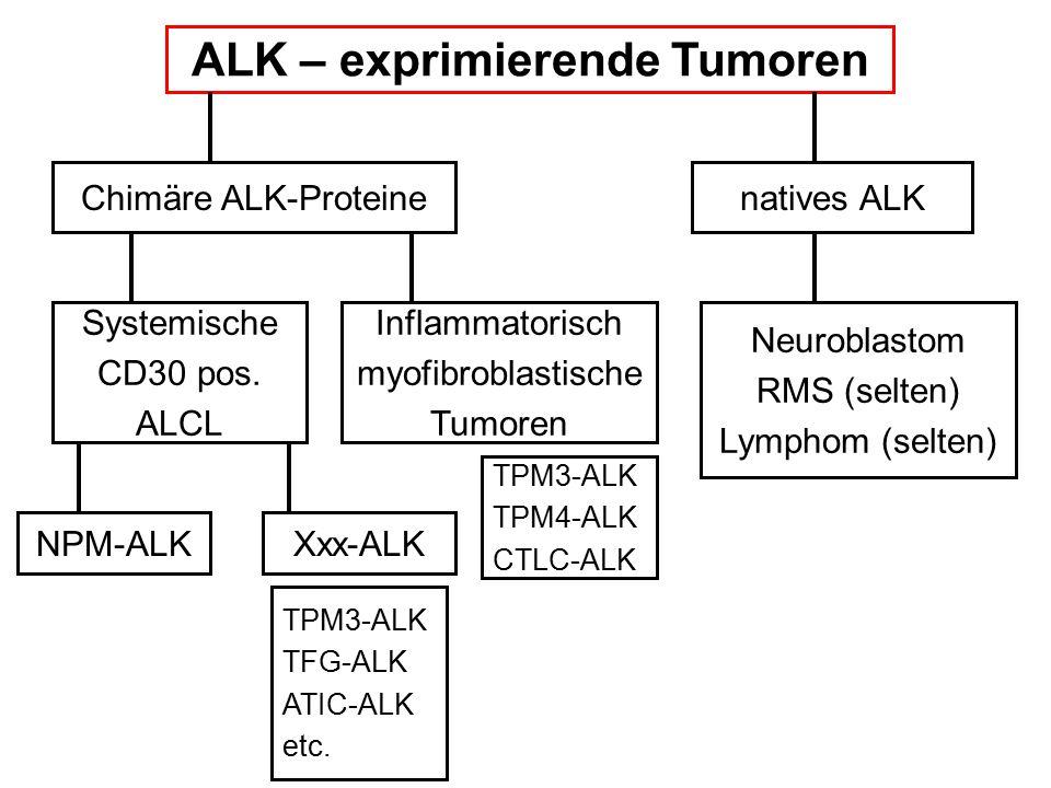 ALK – exprimierende Tumoren Chimäre ALK-Proteinenatives ALK Systemische CD30 pos. ALCL Inflammatorisch myofibroblastische Tumoren NPM-ALKXxx-ALK Neuro