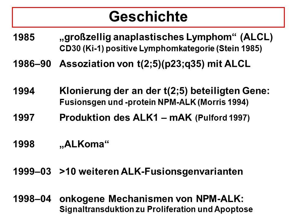 """Geschichte 1985 """"großzellig anaplastisches Lymphom (ALCL) CD30 (Ki-1) positive Lymphomkategorie (Stein 1985) 1986–90Assoziation von t(2;5)(p23;q35) mit ALCL 1994 Klonierung der an der t(2;5) beteiligten Gene: Fusionsgen und -protein NPM-ALK (Morris 1994) 1997Produktion des ALK1 – mAK (Pulford 1997) 1998""""ALKoma 1999–03>10 weiteren ALK-Fusionsgenvarianten 1998–04onkogene Mechanismen von NPM-ALK: Signaltransduktion zu Proliferation und Apoptose"""