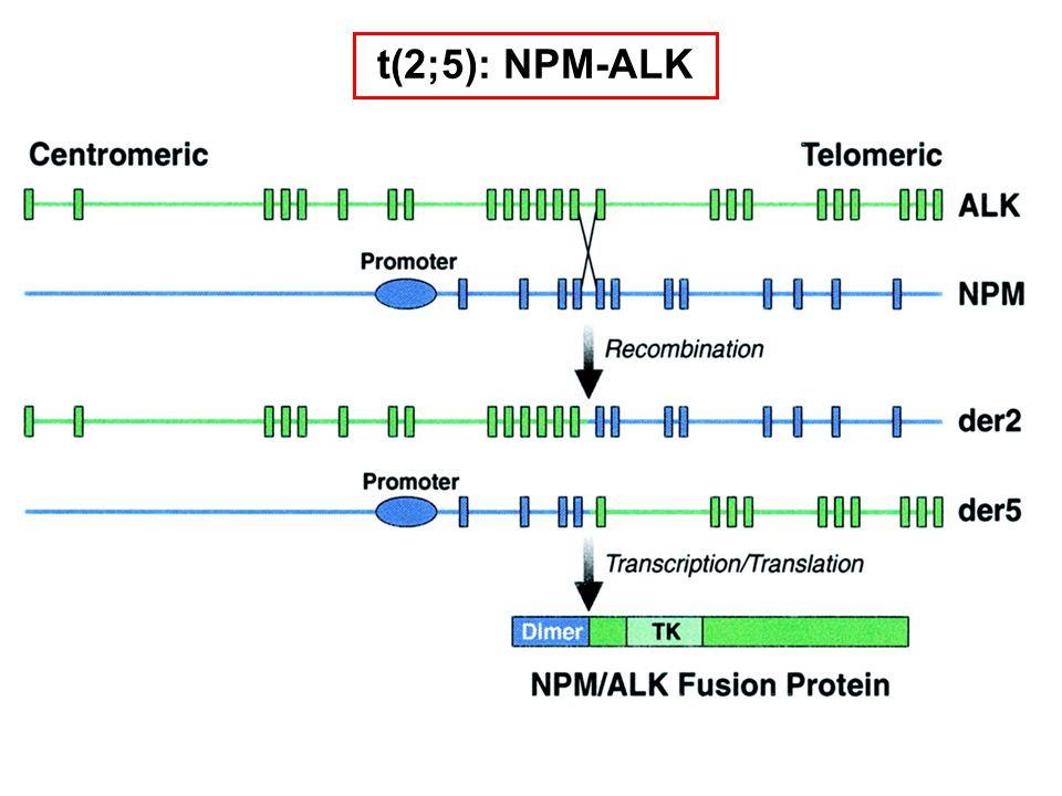 t(2;5): NPM-ALK