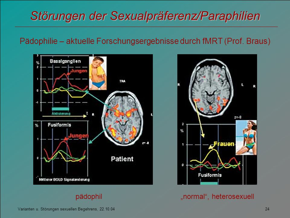 Varianten u. Störungen sexuellen Begehrens, 22.10.04 24 Störungen der Sexualpräferenz/Paraphilien Pädophilie – aktuelle Forschungsergebnisse durch fMR