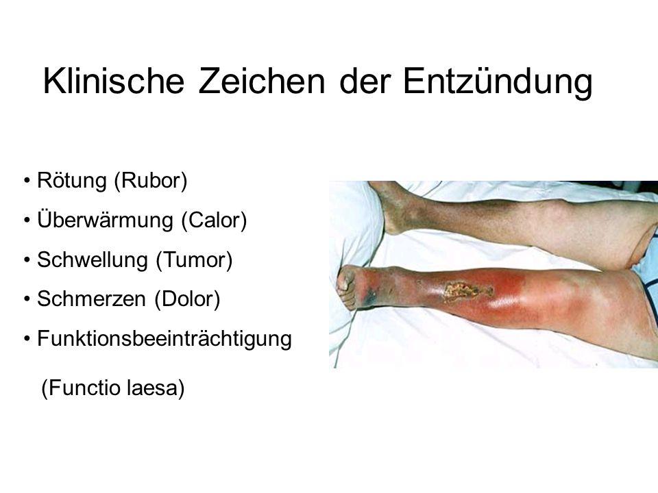 Klinische Zeichen der Entzündung Rötung (Rubor) Überwärmung (Calor) Schwellung (Tumor) Schmerzen (Dolor) Funktionsbeeinträchtigung (Functio laesa) )