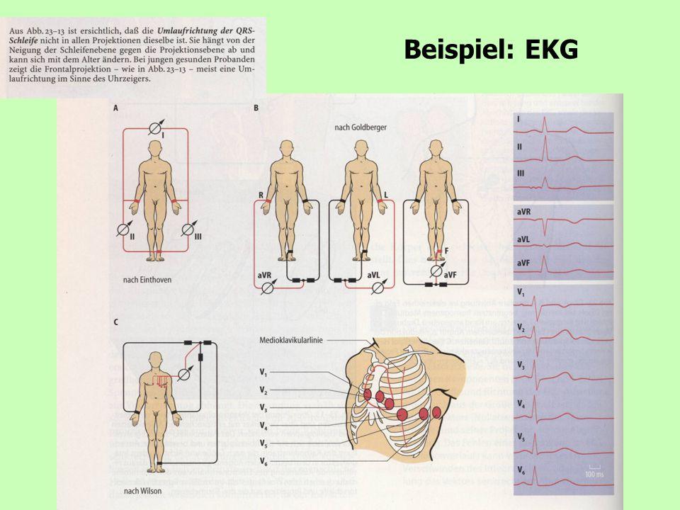 3 Beispiel: EKG